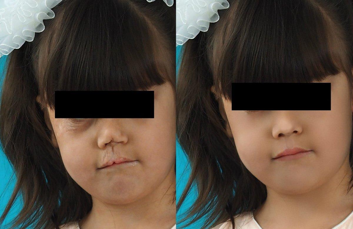 дорисовка лица - Alina