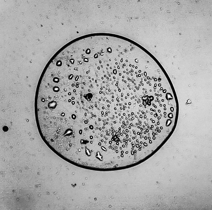 фото под микроскопом для сравнения с каплей зоопланктона - Георгий