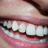 Бриллиантовый зуб :: Эрик Делиев